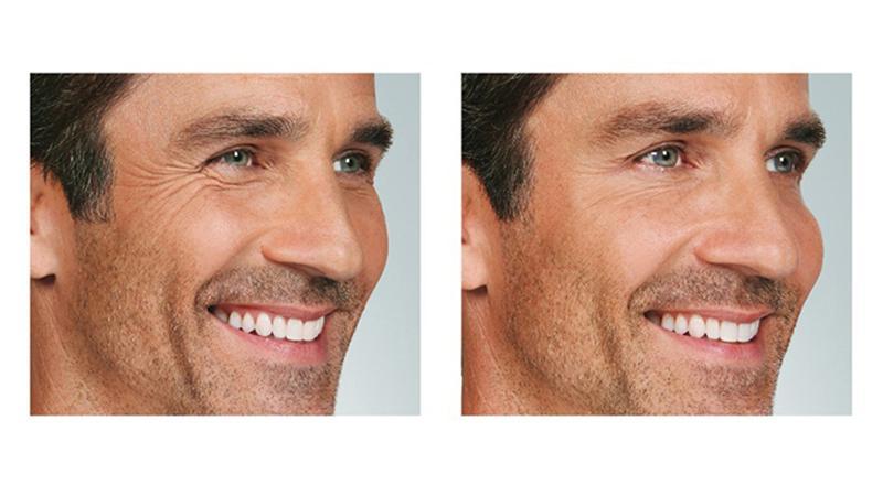 David Botox Cropped